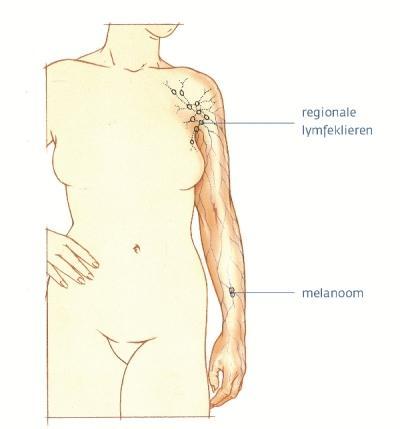 waar liggen lymfeklieren